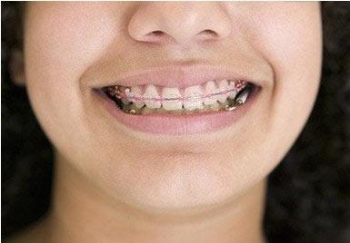 儿童牙齿更换顺序图