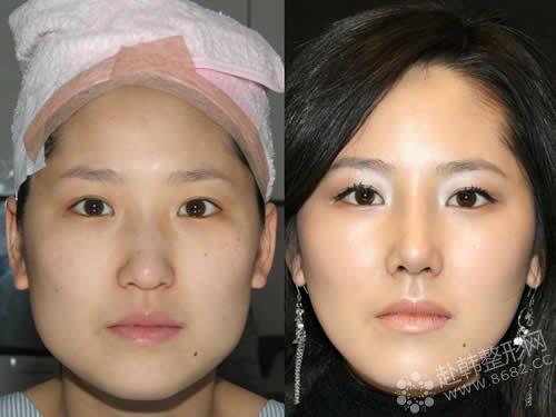 打瘦脸针后多久可以效果衡力瘦脸针大概多久看到看到效果图片