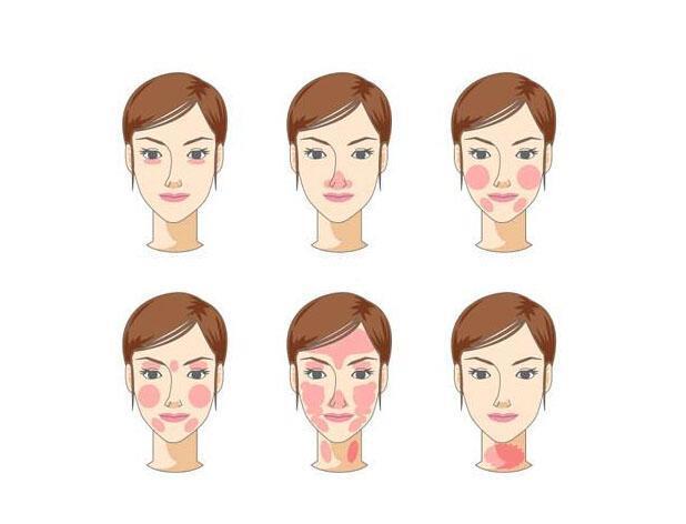 8682赴韩整形网:面部红血丝怎么治疗,疤痕修复