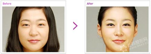 韩式三点法双眼皮手术过程