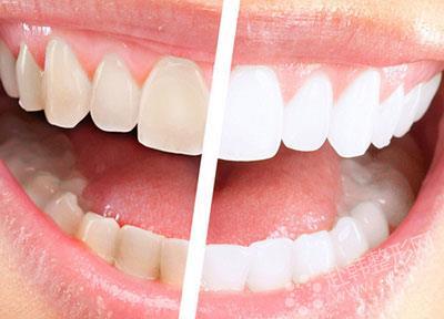 树脂牙齿图片大全