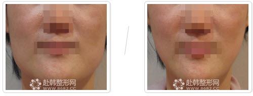 botox瘦咬肌前后对比照片
