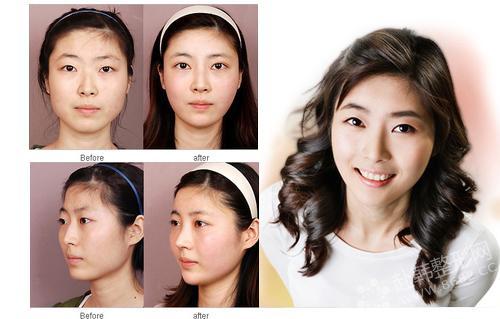眼、鼻、面部轮廓整形对比照