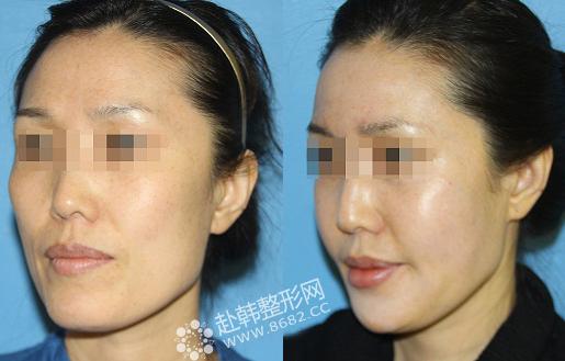 面部脂肪填充前后对比照片