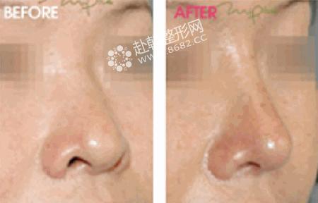 现在整形中朝天鼻整形可以达到格外好的效果帮助大家摆脱鼻孔外露