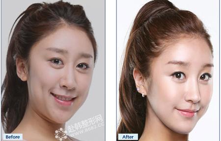 鼻部整形前后对比照片图片