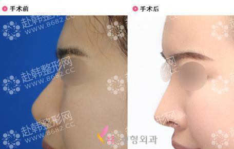鼻部整形前后对比图片