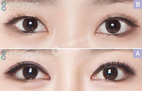 8max眼部整形前后对比照片