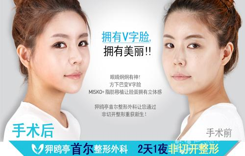 MISKO+脂肪移植非切开V脸整形对比照