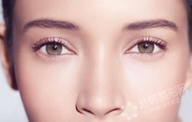 做埋线双眼皮能保持多久?