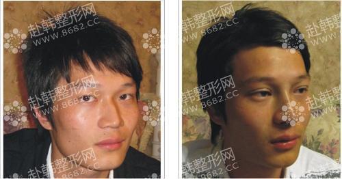 男生也能做双眼皮吗 男生双眼皮整形对比照