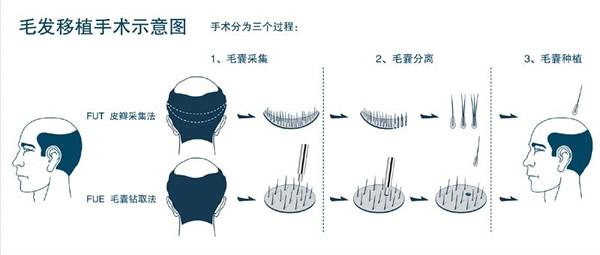 毛发移植的注意事项,你了解多少?