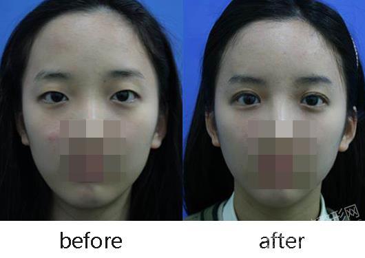双眼皮整形前后对比照(-韩式三点双眼皮能保持多久图片