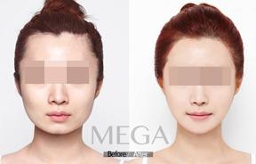 面部轮廓对比照