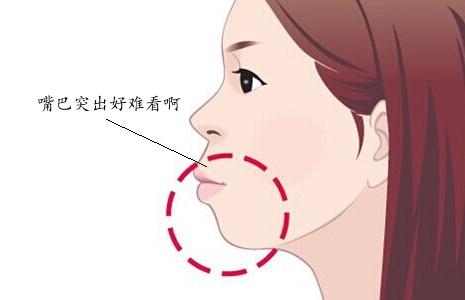 嘴巴突出来侧脸很难看是一种怎样的体验?