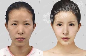 眼部+面部脂肪填充对比照
