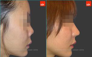 鼻部修复对比照