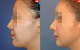 鼻尖延长对比照
