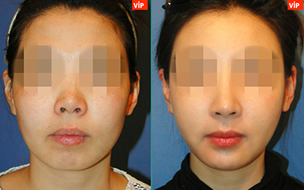 短鼻延长对比照