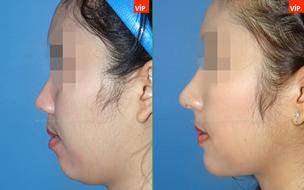 耳软骨隆鼻对比照