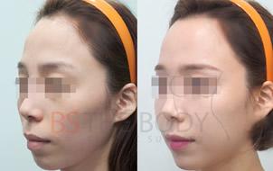 面部脂肪填充对比照
