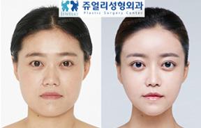 面部轮廓手术前后