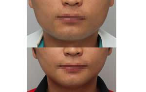 长曲线下颌角缩小术