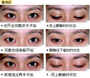 双眼皮失败修复