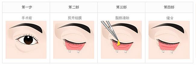 手术去眼袋   手术去眼袋,一般从下眼睑睫毛缘2-3毫米的地方做切口,切开皮肤,去除部分眼轮匝肌及眶膈脂 肪,适量切除松弛的下眼睑皮肤。用无损伤缝合线缝合,包扎。   所需疗程:通常一次即可   特点:适用于任何眼袋,对眼睛没有伤害,能对皮肤、眼轮匝肌、脂肪同时进行处理,使眼部变得更年轻。   激光去眼袋   激光去眼袋就是通过激光去脂起到收紧皮肤的效果,去眼袋采用新型的超脉冲激光方法,从睑板内侧结膜处切一约0.