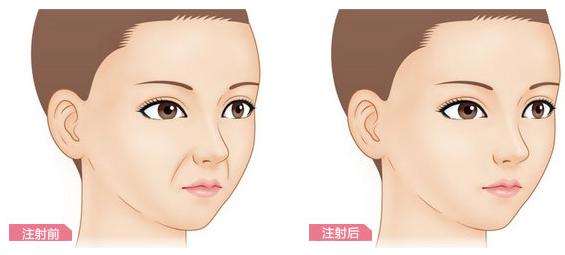 玻尿酸豐鼻唇溝