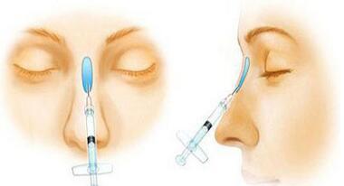 注射隆鼻后遗症
