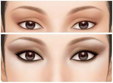 """肿眼泡,俗称""""金鱼眼"""",可以分为两种类型,一种是单纯的脂肪性的肥厚肿"""