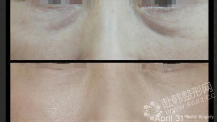 眼部皱纹对比照