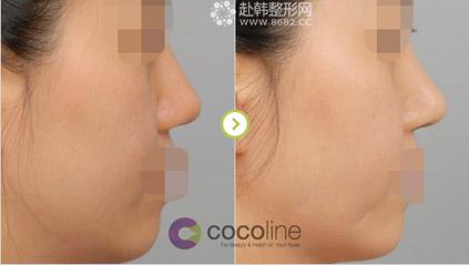 隆鼻和贵族手术案例照片