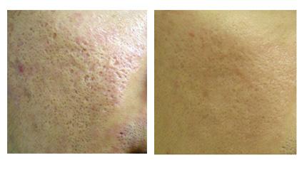 经典案例之皮肤治疗