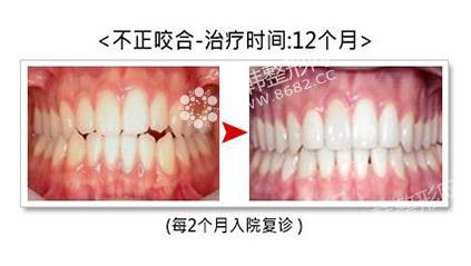 不合牙齿矫正前后对比照