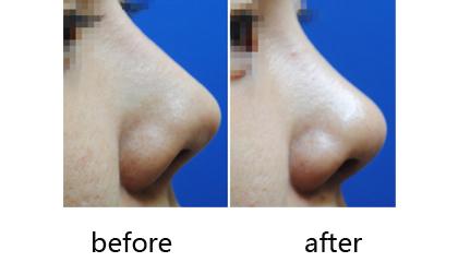 隆鼻修复前后对比照片
