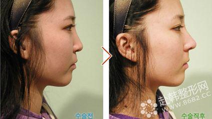韩国美谈美容整形外科隆鼻对比照片