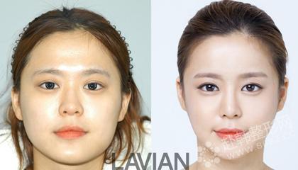 面部轮廓整形对比照
