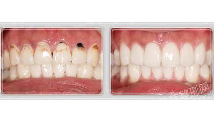 牙齿整形前后对比