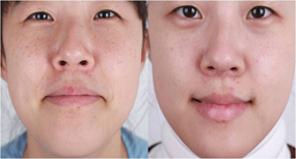 唇部整形 嘴角上提手术