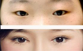 经典韩式双眼皮成形术
