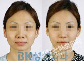 韩式无痕开眼角手术