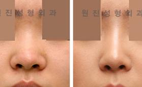 鼻孔缩小手术