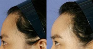 额部整形 额部填充手术