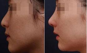 颌面整形 下颌前突矫正