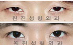 男性眼部手术