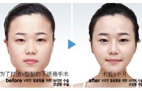 朴相薰v型脸部整形术对比照片