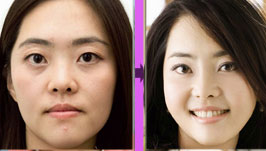 双眼皮手术前后