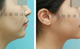 面部吸脂手术